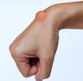 Ganglion Cyst Finger