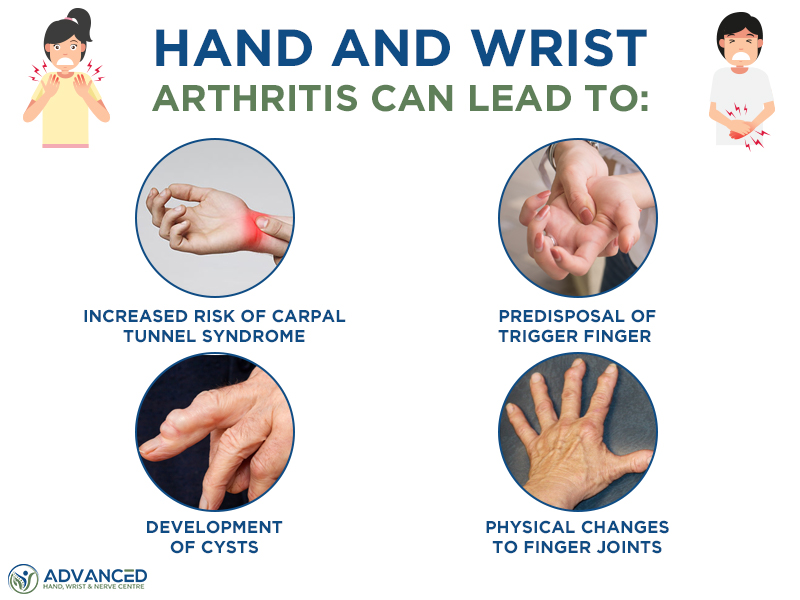 Effects of Hand and Wrist Arthritis