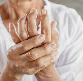 Hand Arthritis Pain