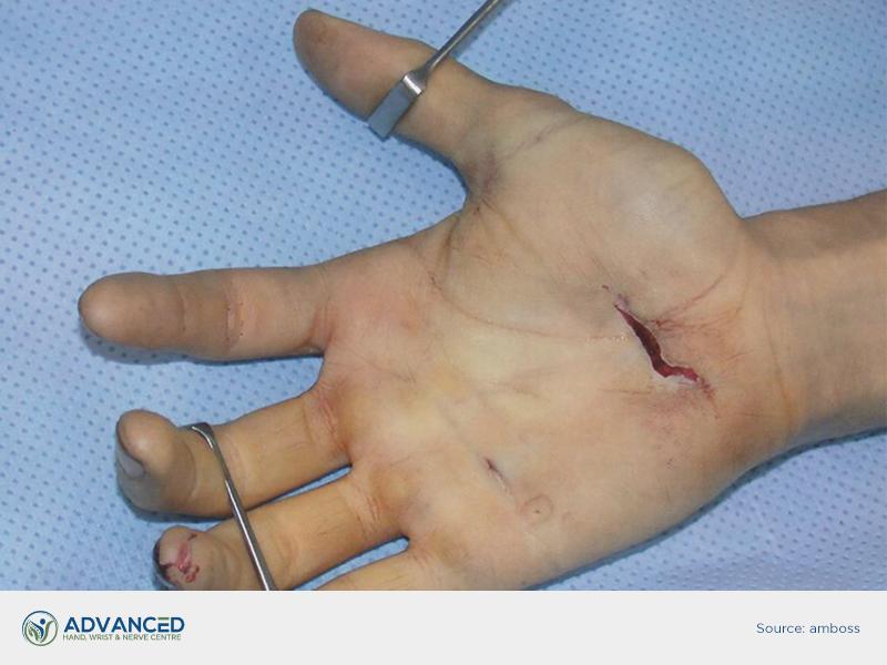 peripheral nerve injury